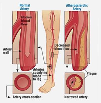 CSA Surgical Center - Peripheral Vascular Disease