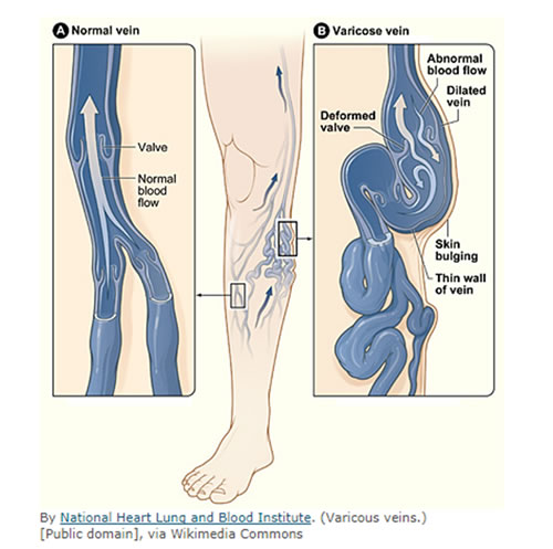 Csa Surgical Center Varicose Vein Treatment